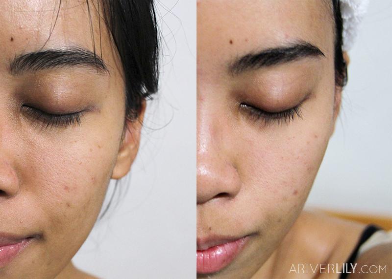 Skineuticals Akne Review